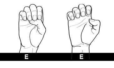 Varianten E DGS